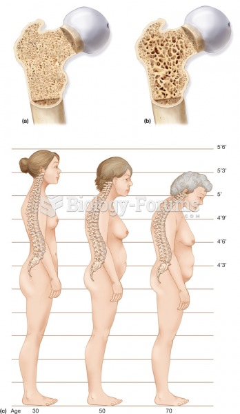 Osteoporosis. (a) A section through normal spongy bone. (b) A section through a bone with osteoporos