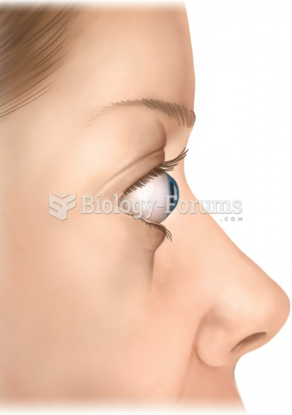 Exophthalmos. The protrusion of the eyes is a common symptom of hyperthyroidism.