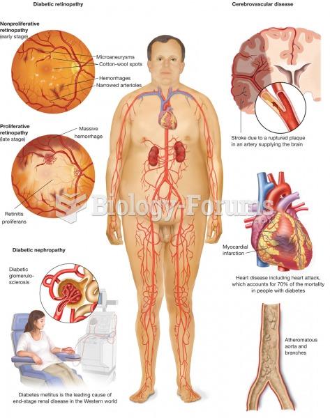 Diabetes mellitus. The metabolic disease diabetes mellitus, with symptoms of polydipsia, polyuria, a