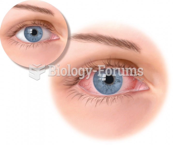 """Conjunctivitis, with the characteristic """"pinkeye"""" appearance. A yellow crusty exudate is also common"""