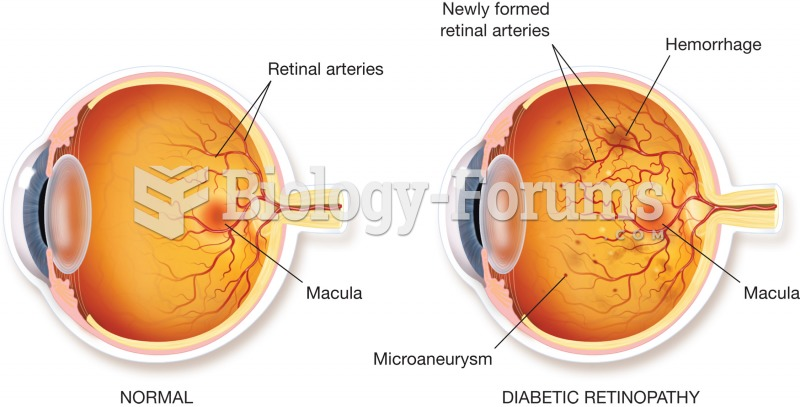 Retinopathy. Illustration of a normal retina (left) and a diseased retina (right). The diseased reti