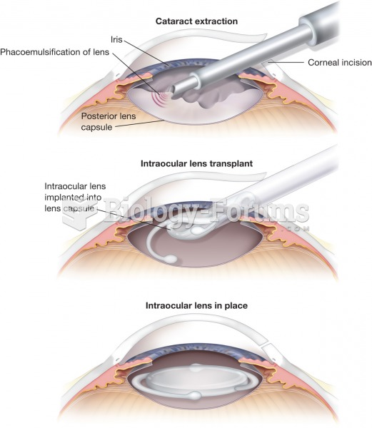 Cataract extraction. The procedure involves a surgical removal of a cataract lens and its replacemen
