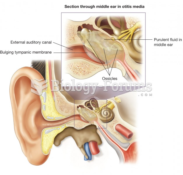 Otitis media. This illustration shows an inflamed tympanic cavity, which is the most common source o