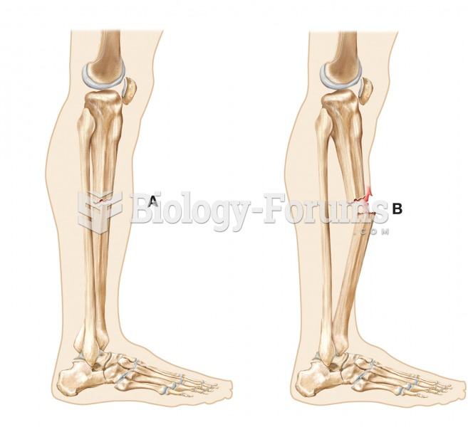(A) Closed (or simple) fracture and (B) open (or compound) fracture.