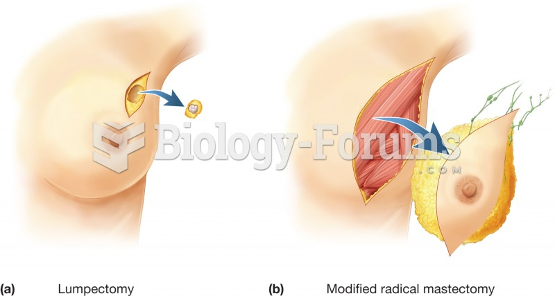 Breast surgery. Surgical removal of all or part of the breast is a treatment against the spread of b