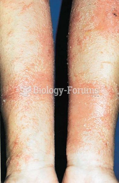 Dermatitis; poison ivy