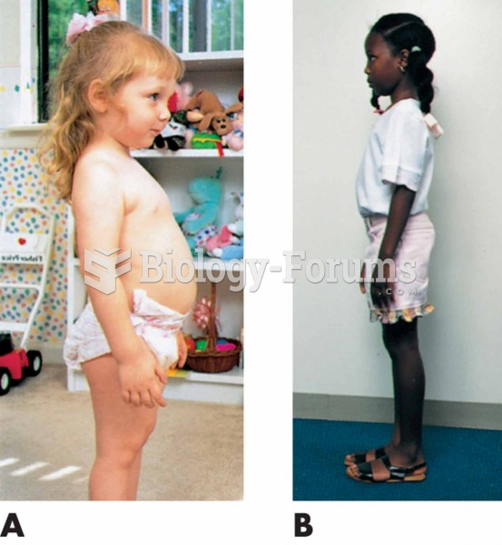 Normal development of posture and spinal curves. (A) Toddler: Protruding abdomen; lumbar lordosis. (