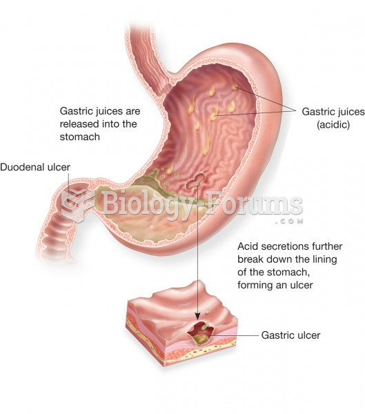 Peptic ulcer. A peptic ulcer may occur in the stomach (gastric ulcer), as shown here, or in the duod