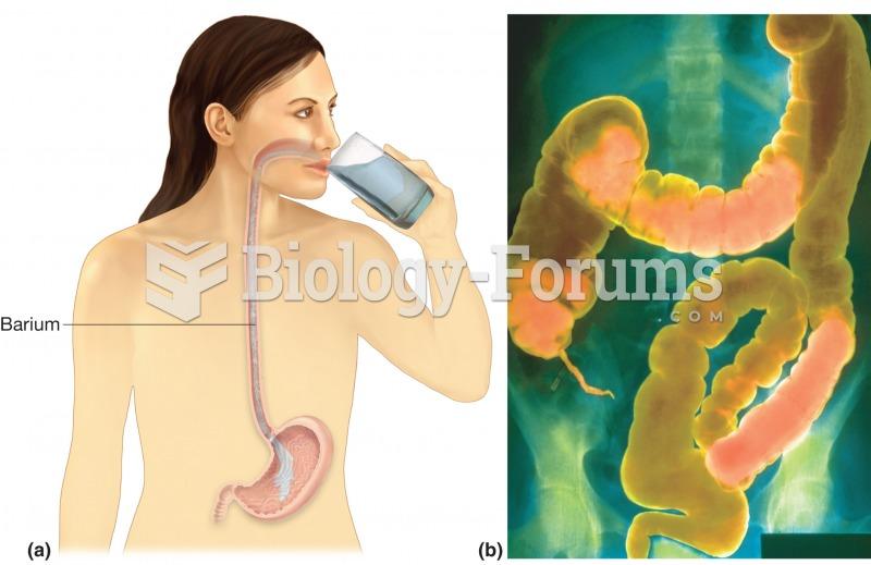 GI series. (a) Upper GI series begins with a barium swallow, barium shake, or barium meal. (b) Lower