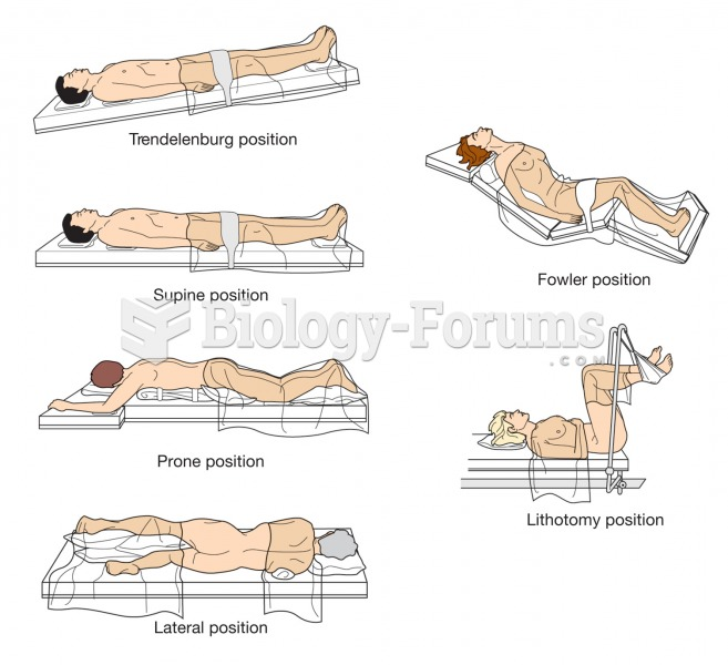 Examples of common surgical positions.