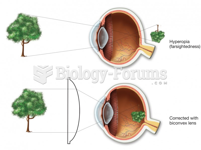 Hyperopia (farsightedness). In the uncorrected top figure, the image would come into focus behind th