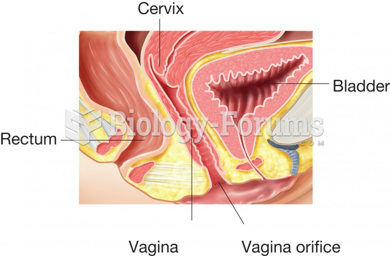 The vagina, sagittal section showing the location of the vagina and its relationship to the cervix,