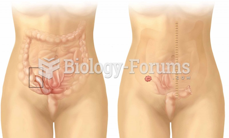 Ileostomy. Note that the cecum and colon have been surgically removed.