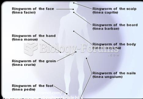 Ringworm Areas