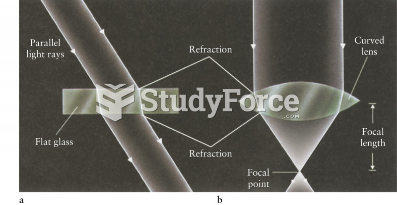 Refraction Through Uniform and Variable Thickness Glasses
