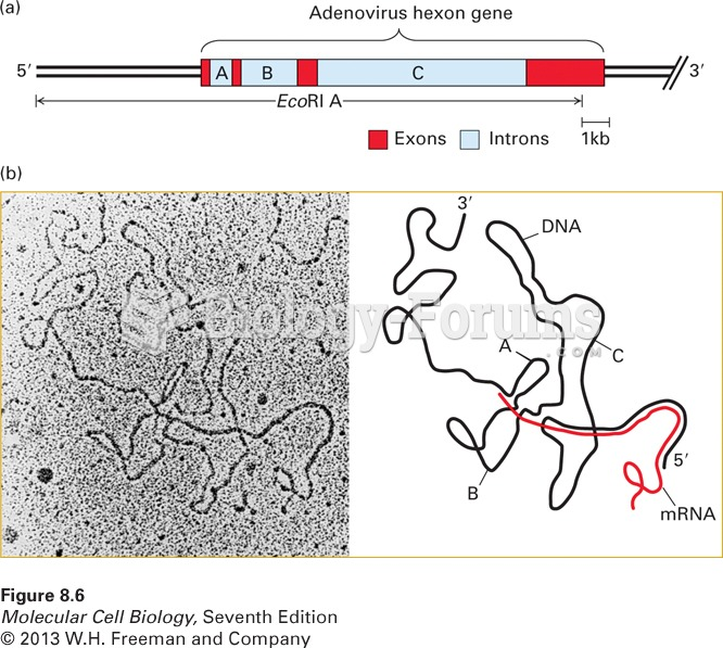 Electron microscopy of mRNA-template DNA hybrids shows that introns are spliced