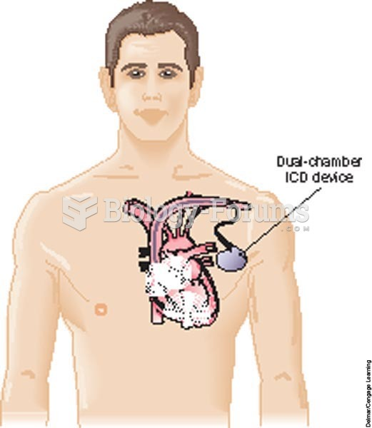 An implantable cardiovert-defibrillator: A dual-chamber ICD device with a pulse generator is implant