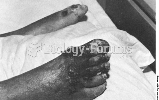 Gangrene of the toes and foot as a result of an infection often means eventual amputation.
