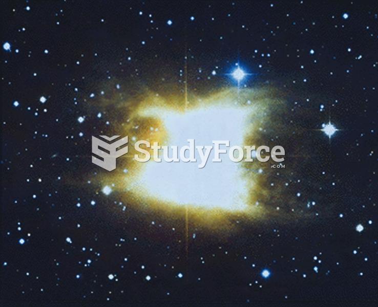 A Mass-Loss Star