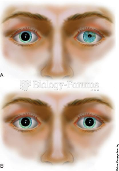 A, Unequal pupils; B, dilated, fixed pupils.
