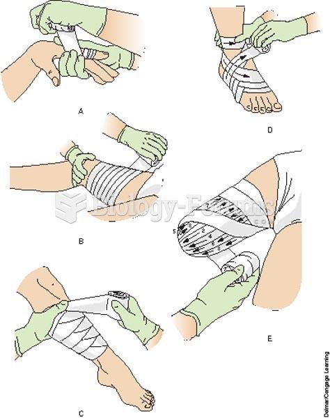 Common bandaging methods