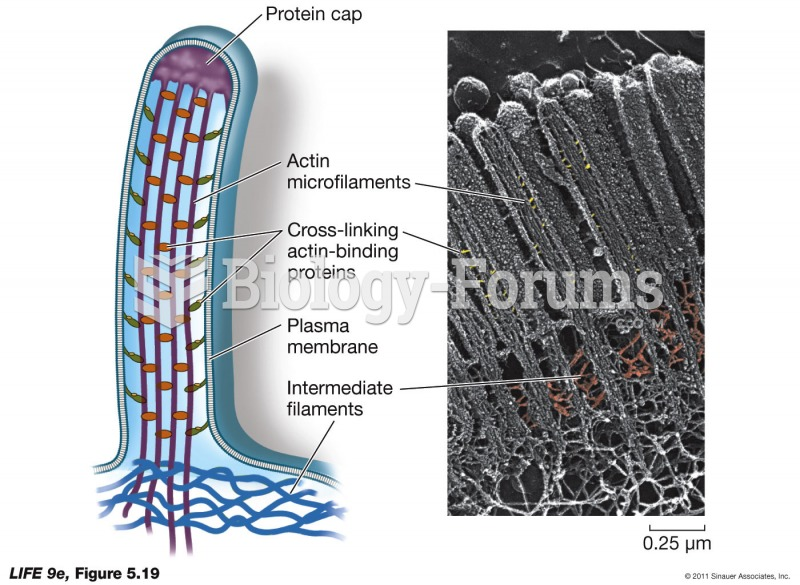 Microfilaments for Support.