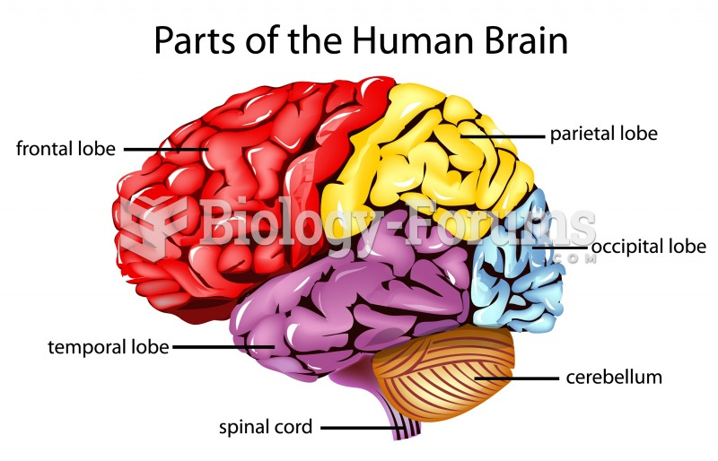 Basic brain diagram