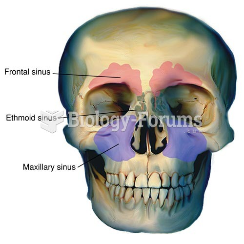 Location of the Sinuses (Sphenoid Sinuses are Directly Behind Ethmoid Sinuses)