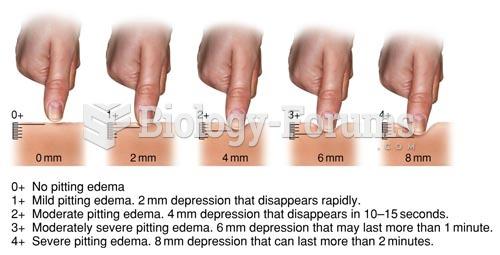 Pitting Edema Grading Scale