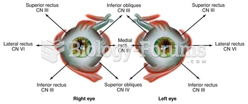 Direction of Movement of Extraocular Muscles