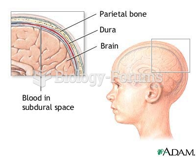 layers of the skull to memorize for intracranial questions