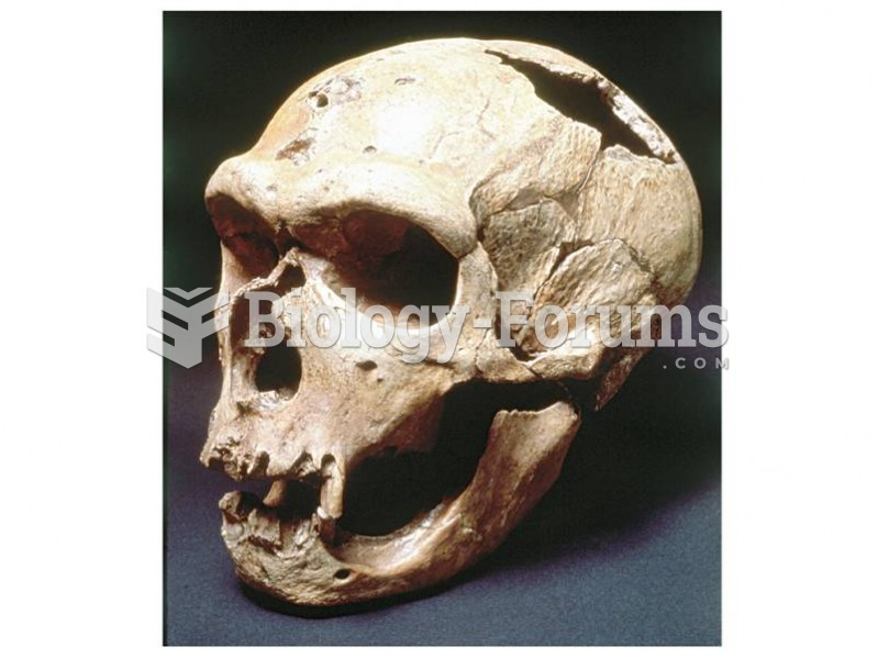 """The """"Old Man"""" from La Chapelle shows evidence of extensive tooth loss and bone resorption."""