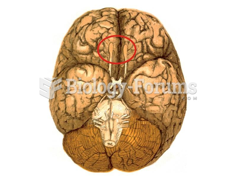 View of the bottom surface of the human brain.