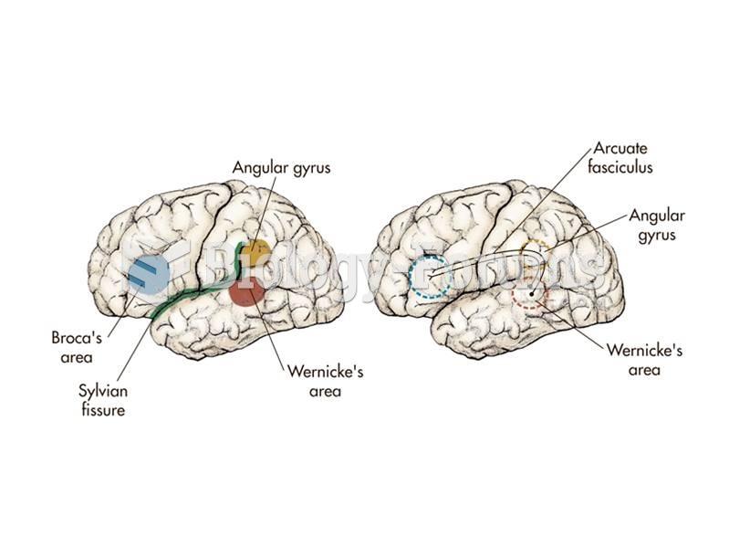 The major language areas of the left hemisphere of the brain.