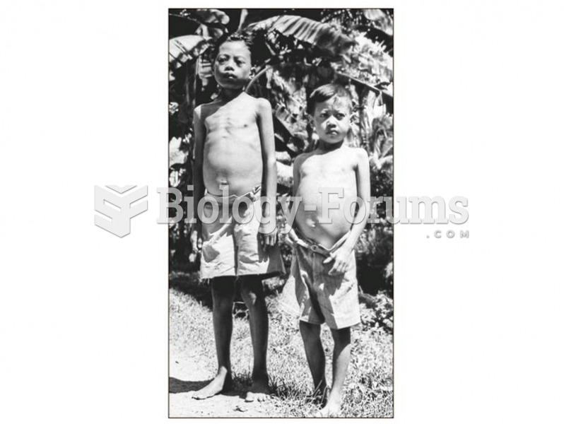 Two children with schistosomiasis.