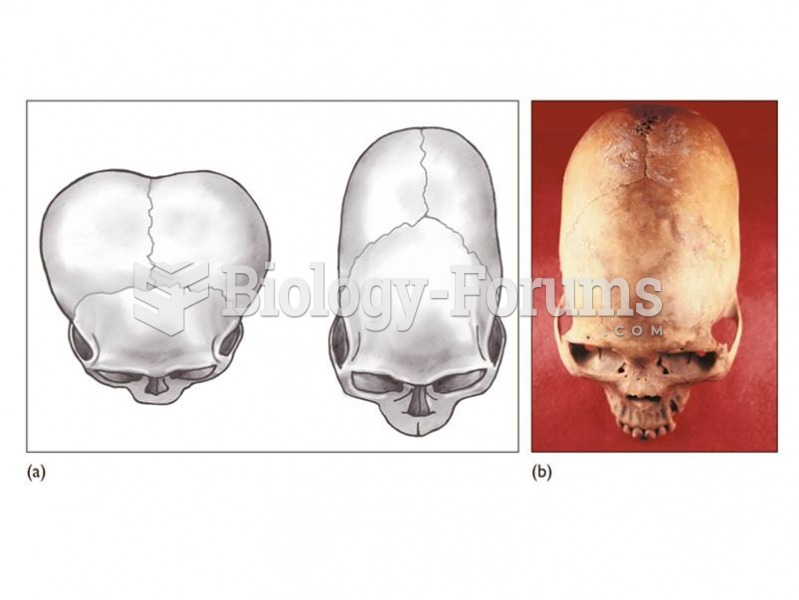 Head binding, or artificial deformation, was used by some populations as a sign of identity.