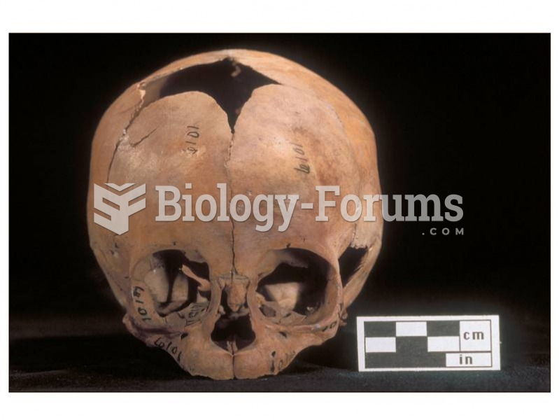 The cranium of a young infant changes dramatically in shape with age. Initially the child has severa