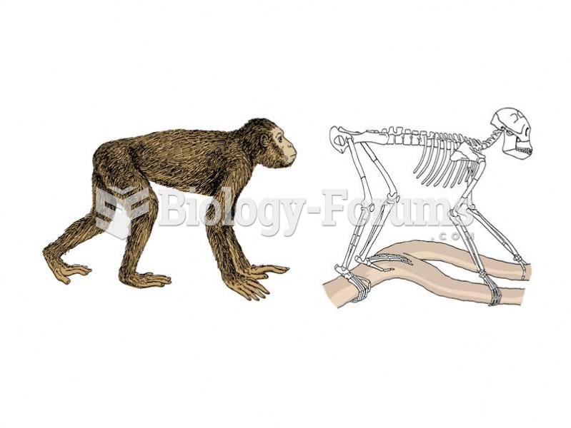 The dental ape Proconsul has an apelike dentition but monkey-like skeleton.