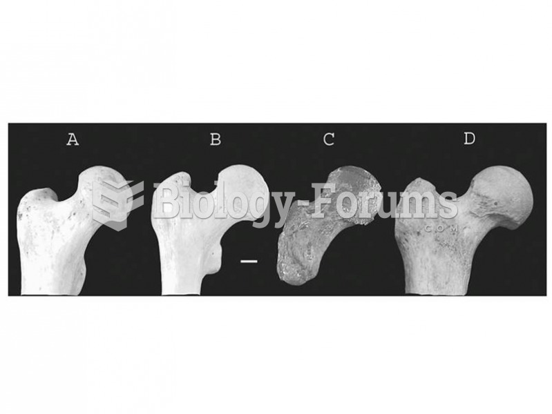 The fossil record of chimpanzees is sparse. The femur from Kikongo, Uganda (c) may represent a late