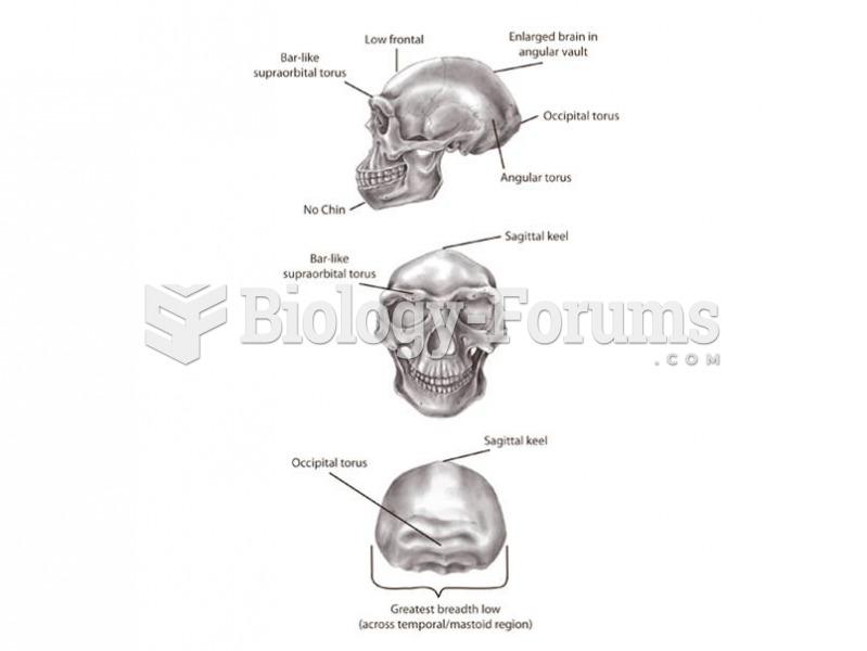 Major features of Homo erectus include increased brain size, an angular vault, and cranial superstru