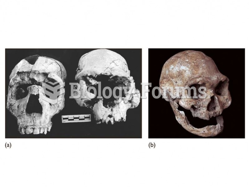 (a) The Dmanisi cranium (right) shows similarities to early African H. erectus including the Narioko