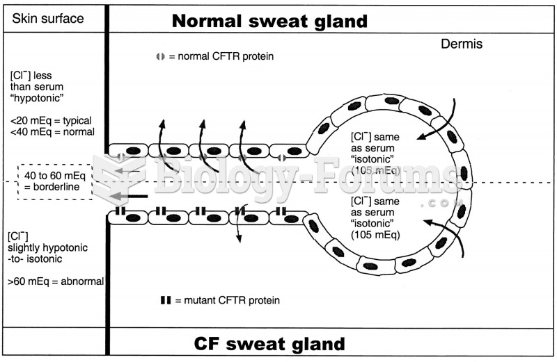 cystic fibrosis sweat glands