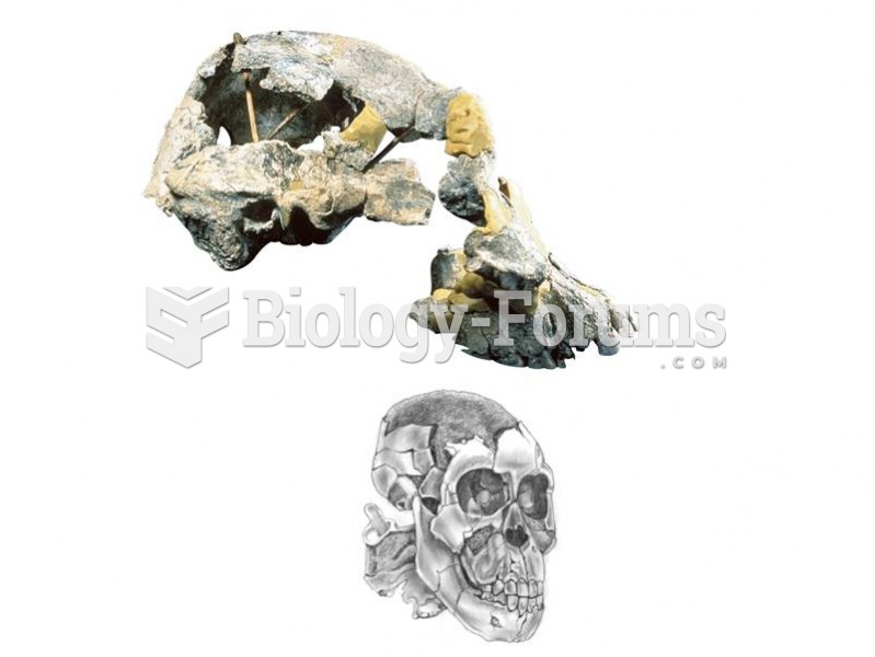 A complete cranium of Au. Afarensis from Hadar, Ethiopia, shows a prognathic face and a small brainc