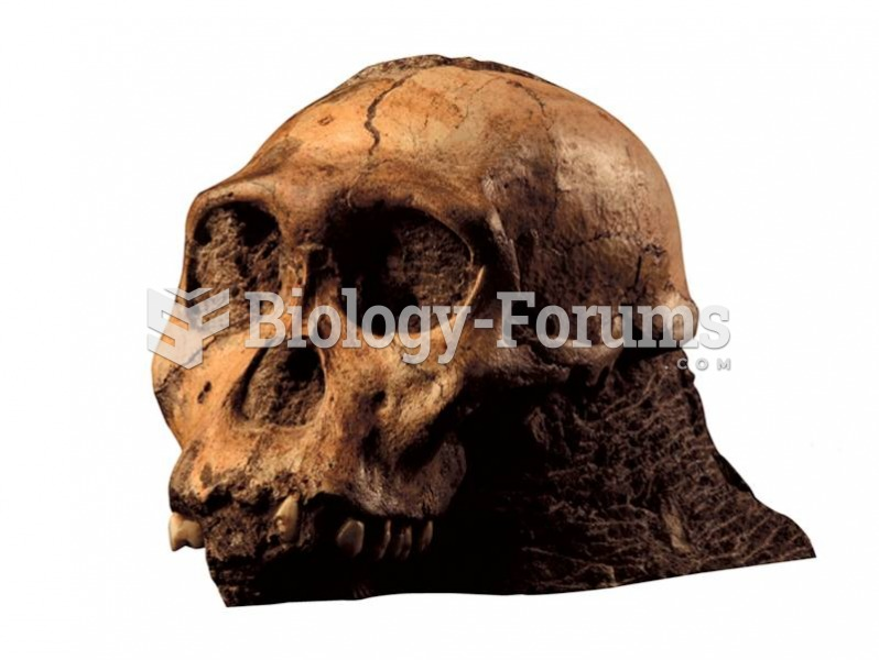 Australopithecus sediba shares small brain size with other members of Australopithecus but also has