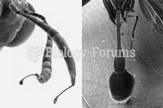 Scorpions, Spiders and Sharks: Electron-Microscope Images