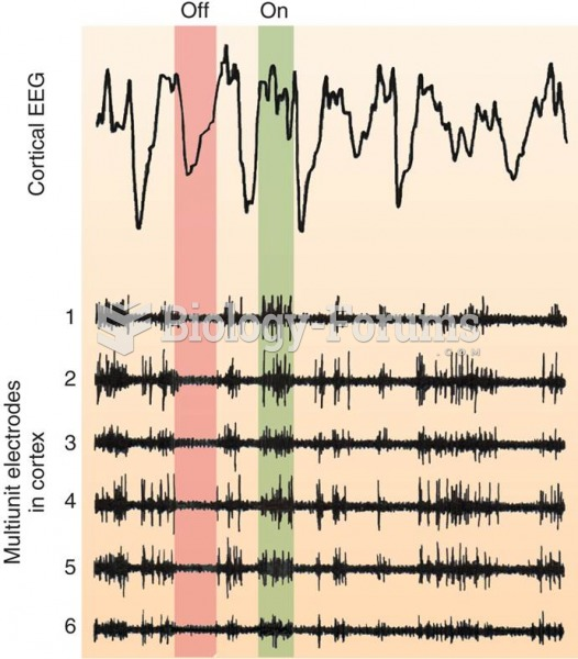 EEG and Single-Cell Activity