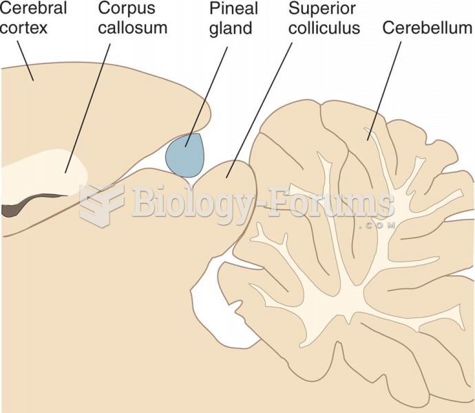 Pineal Gland, Located on the Dorsal Surface of the Midbrain