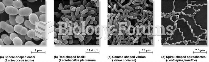 Major types of microbial cell shapes.