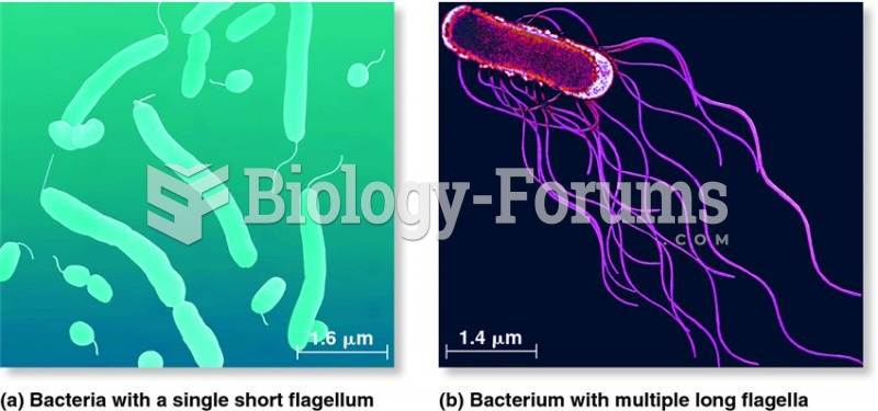 Differences in the number and location of flagella.