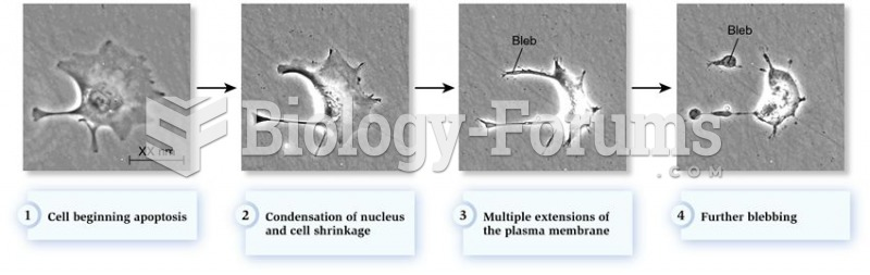 Stages of apoptosis